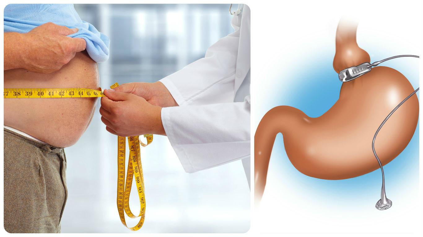 Antes de la operación de bypass gástrico en Valencia, el especialista pedirá un examen clínico.