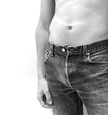 Esta cirugía te ayudará a conseguir el abdomen plano que siempre deseaste.