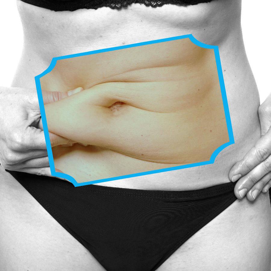 A lo largo del período de recuperación tras una abdominoplastia en Barcelona es necesario seguir determinadas indicaciones médicas.