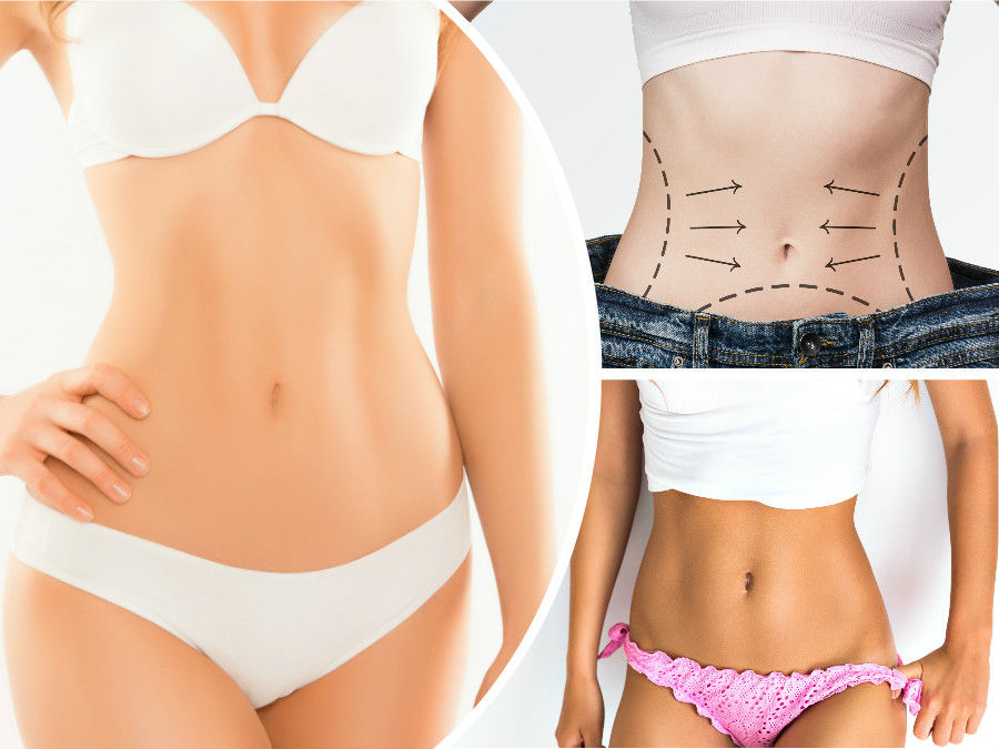 La abdominoplastia en Cartagena no es una técnica indicada para perder peso, sino para tonificar los músculos del abdomen.
