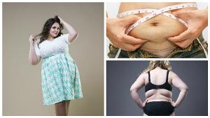 Hay que comenzar considerando que no todas las personas con sobrepeso son aptas a una abdominoplastia en Madrid.