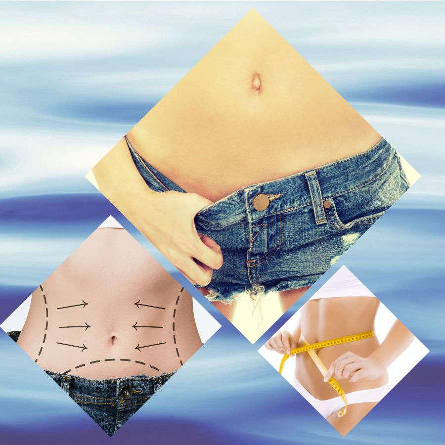 Con esta operación se elimina la grasa acumulada en la zona del abdomen y se logra un mayor tono muscular.