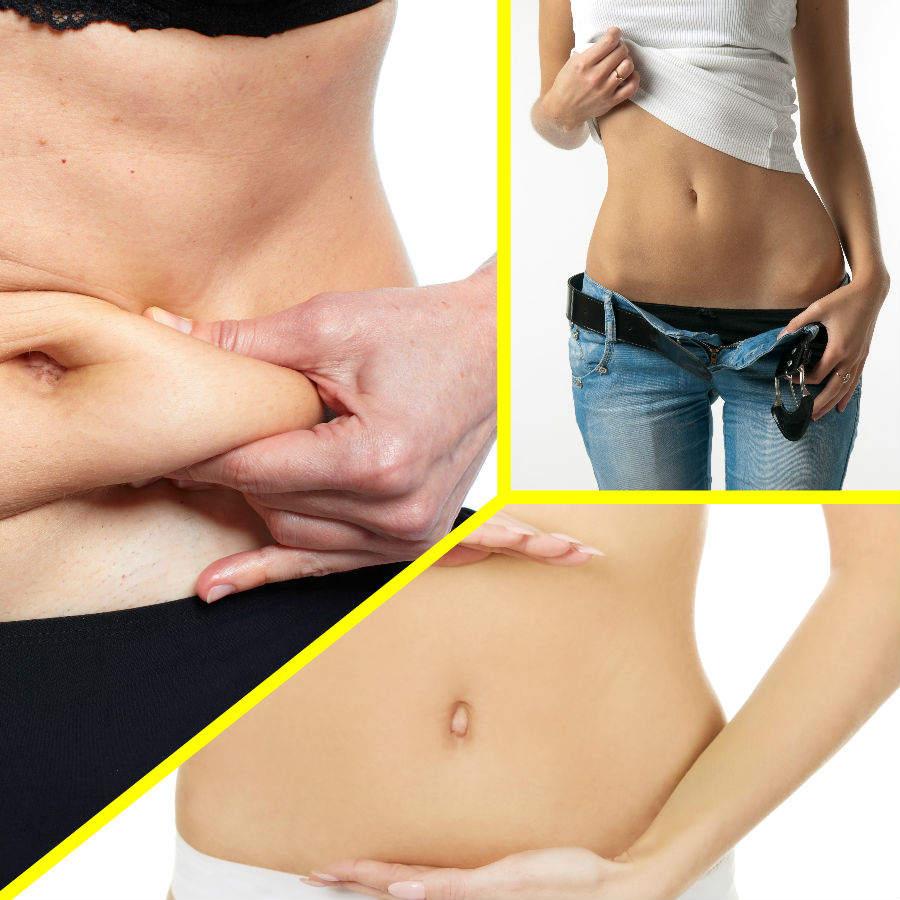 Para ser un candidato idóneo para una abdominoplastia en Vigo no basta con padecer problemas de sobrepeso.