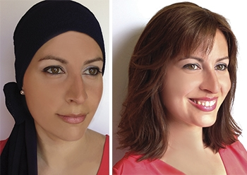 Antes y después con peluca oncológica en Pamplona. / Rueber - Centro Capilar en Pamplona