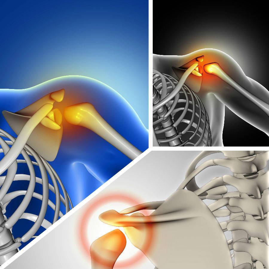 Algunas lesiones en los tendones de la articulación pueden requerir la realización de esta cirugía.