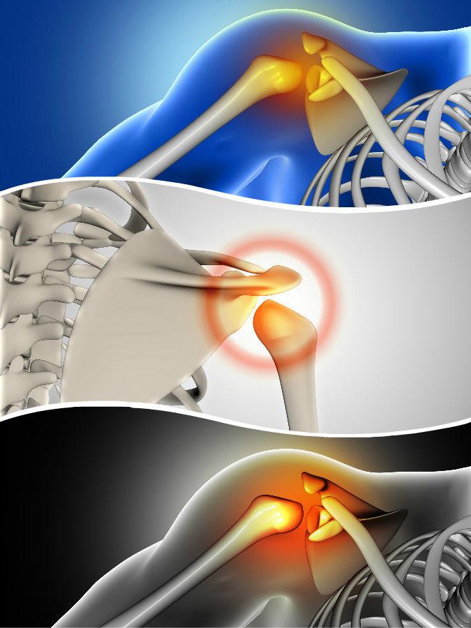 A través de mínimas incisiones podrán tratarse diferentes lesiones en esta articulación.