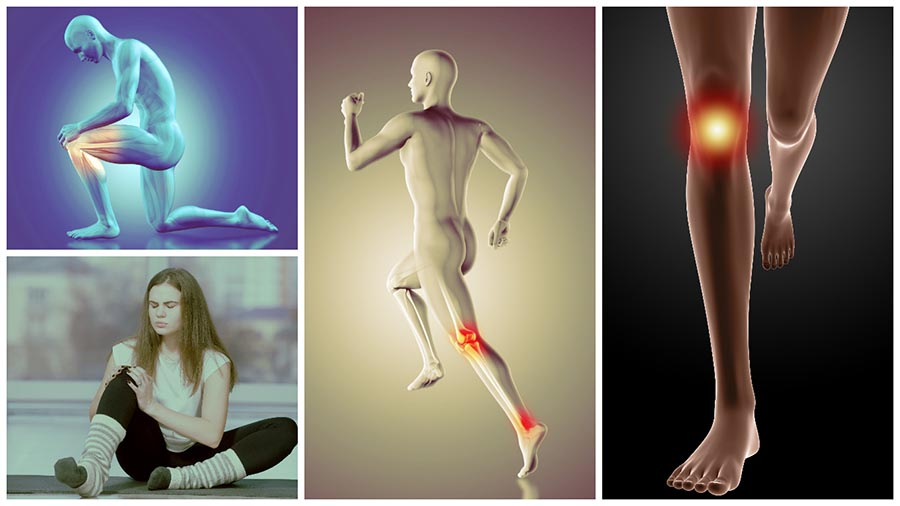 La artrosis de rodilla es una de las principales enfermedades que afectan a los huesos.