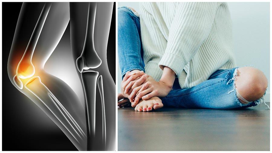La artroscopia de rodilla en Madrid es una técnica quirúrgica mínimamente invasiva para tratar lesiones de esta articulación.