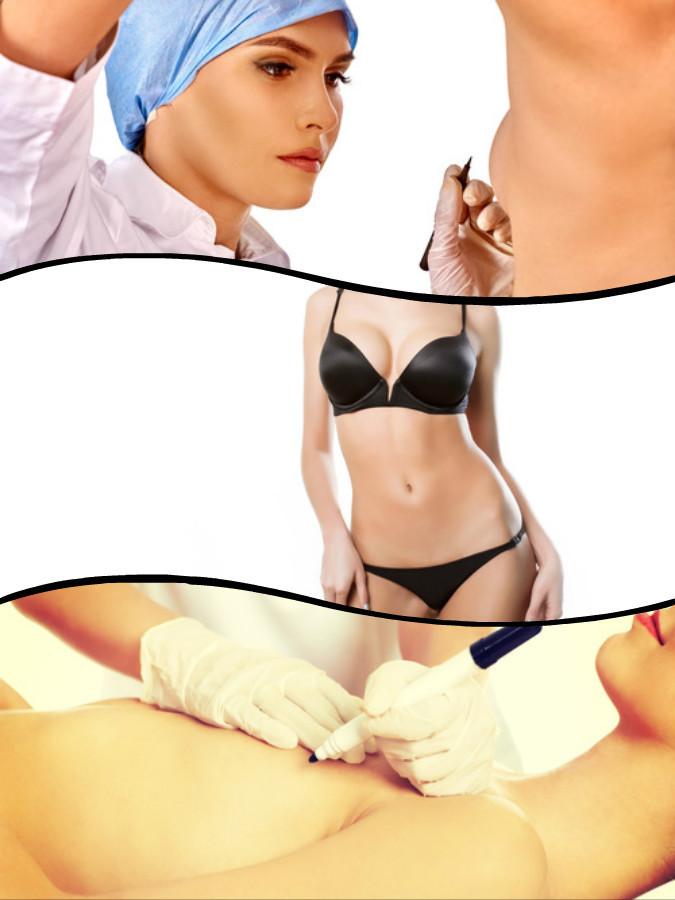 Periareaolar, submamaria y axilar son las tres vías de colocación de prótesis en un aumento de senos en A Coruña.