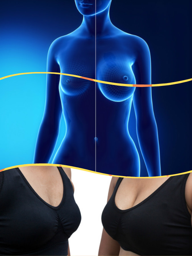 Para el aumento de senos en Las Palmas de Gran Canaria se dispone de distintas clases de implantes mamarios.