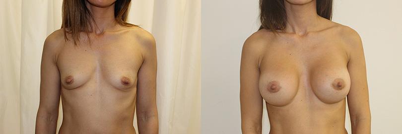 Foto antes y después aumento de pecho (frontal).