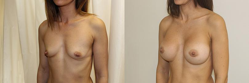 Foto antes y después aumento de pecho (lateral izquierdo).