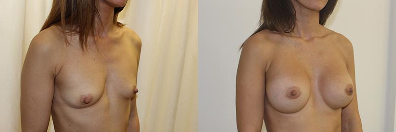 Foto antes y después aumento de pecho (lateral derecho).
