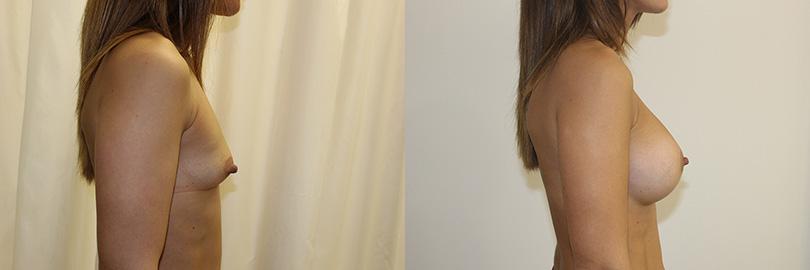 Foto antes y después aumento de pecho (perfil derecho).