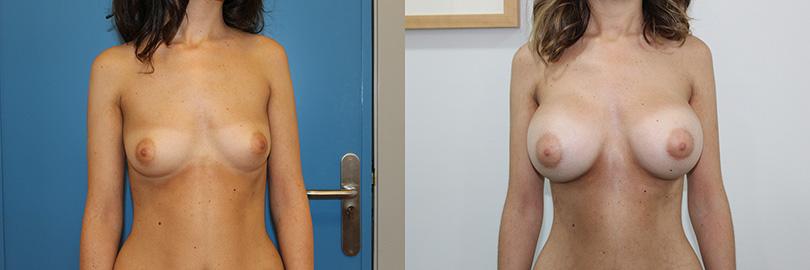 Foto del antes y después del aumento de pecho: frontal.