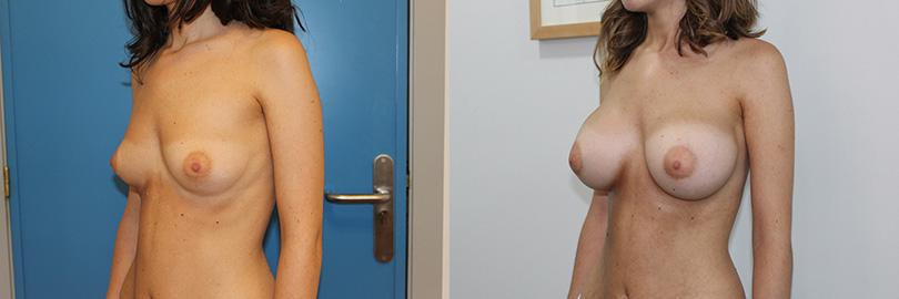 Foto del antes y después del aumento de pecho: lateral izquierdo.