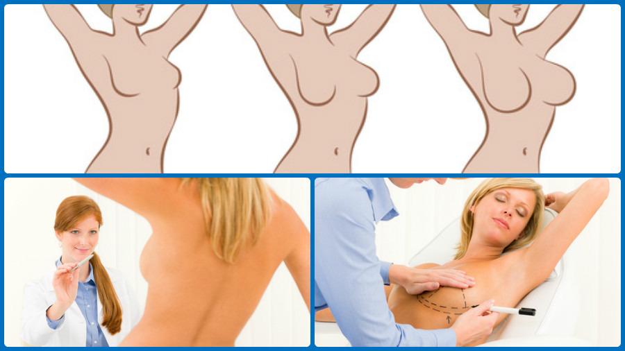 La intervención puede atender a diversos fines: reconstrucción, modificaciones de peso, envejecimiento, etc.