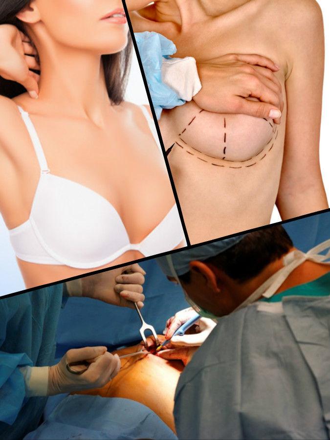 En el aumento de senos en Vigo se pueden utilizar prótesis o implantes mamarios de dos clases: silicona o suero salino.