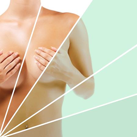 No hay evidencias científicas de que las prótesis de aumento de pecho produzcan cáncer de mama.