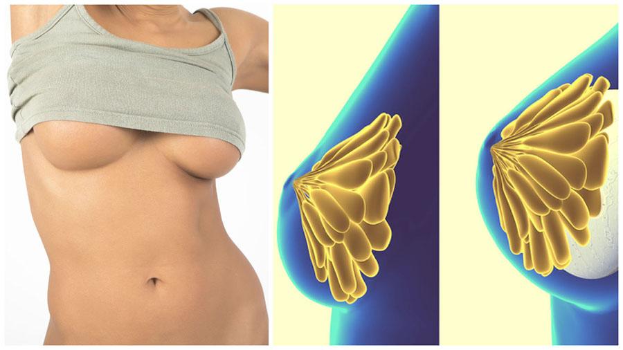 El tamaño y tipo de prótesis para el aumento de pecho en Santiago de Compostela dependerá, entre otras cosas, de la anatomía de las mamas.