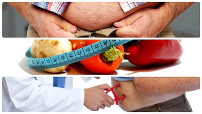 En principio, siempre se debe procurar bajar de peso mediante ejercicio y una alimentación equilibrada.