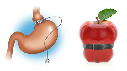 La obesidad mórbida no tiene una cura definitiva, pese al gran avance en técnicas de cirugía bariátrica.