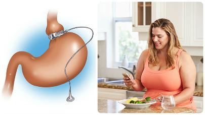 Existen dos tipos de métodos de reducción de estómago, las restrictivas y las malabsortivas.
