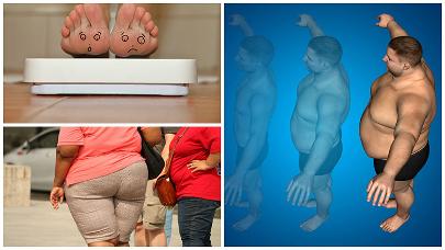 La obesidad mórbida es una enfermedad que no tiene cura, aunque la cirugía bariátrica ayuda a controlarla.
