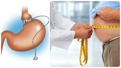 La banda gástrica en Valencia consiste en colocar un anillo ajustable en el estómago, para reducir su tamaño.