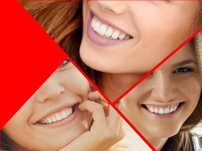 El simple paso del tiempo es motivo suficiente para que los dientes se vuelvan más amarillos.