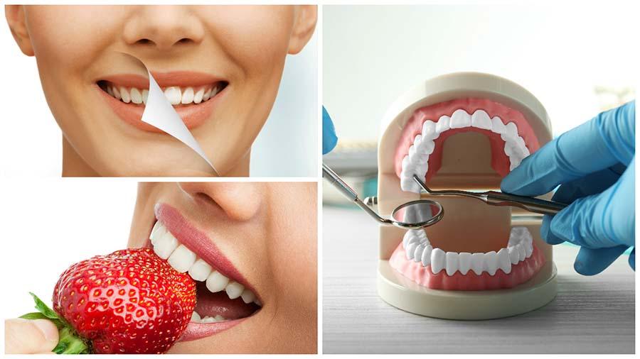 El blanqueamiento dental en León es un tratamiento sencillo e indoloro.