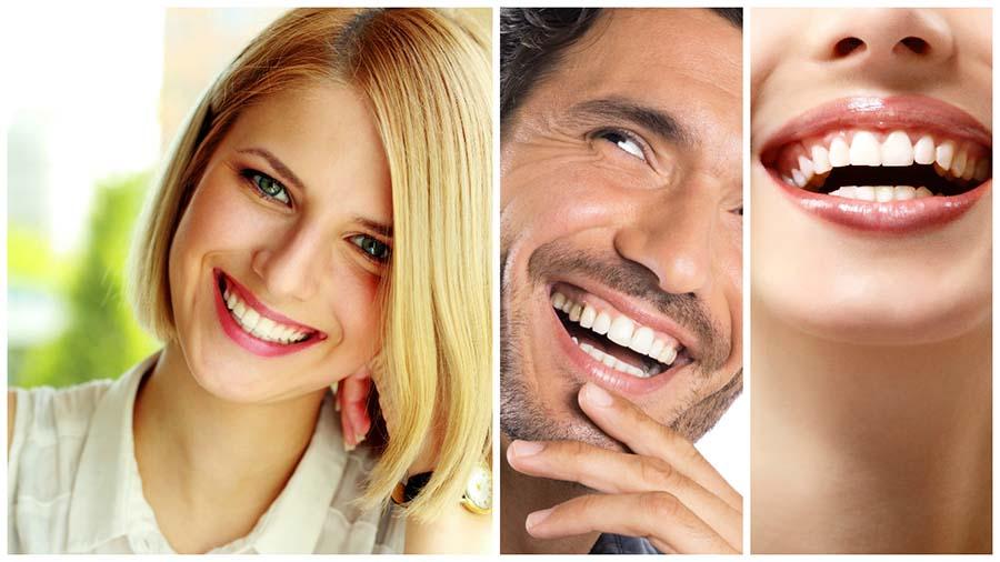 Los efectos del blanqueamiento dental en León pueden durar varios años.