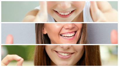Cada vez son más las personas que deciden someterse a un blanqueamiento dental en Santa Cruz de Tenerife.