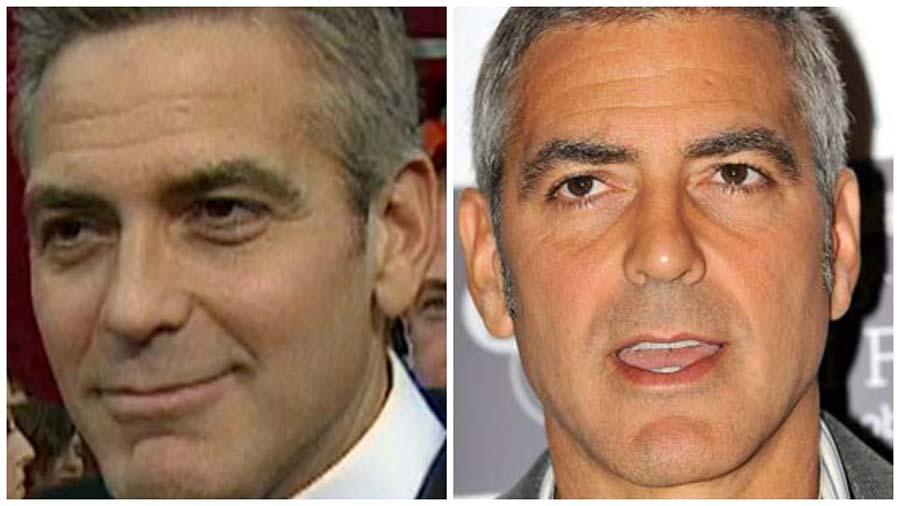 La blefaroplastia del actor George Clooney es uno de los casos que más ha trascendido.