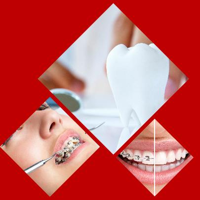 Prácticamente cualquier problema dental será solucionado con la colocación de brackets en Córdoba.