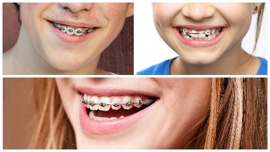 Hay alimentos aconsejados y otros que han de evitarse mientras dura el tratamiento de ortodoncia.