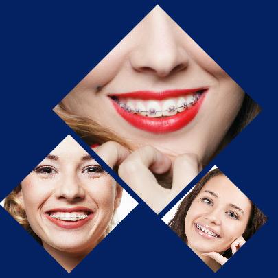 Mediante una ortodoncia con brackets en Madrid se consiguen solucionar numerosos problemas dentales.