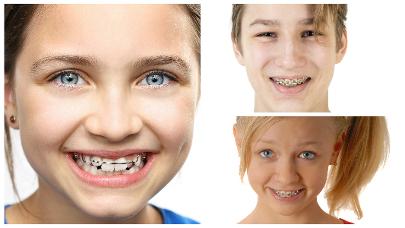 El precio de una ortodoncia está compuesto por diferentes variables, por lo que no puede precisarse con facilidad.