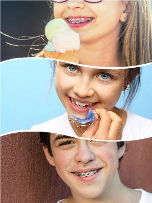 El inicio de un tratamiento de ortodoncia infantil provocará que cuenten con una buena salud dental en la adolescencia.