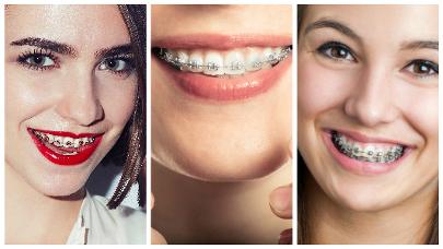 Con la ortodoncia interceptiva se pretende detener una inadecuada evolución de los dientes.
