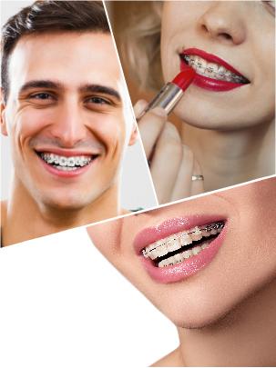 Con una adecuada salud de dientes y encías, cualquiera tiene la oportunidad de someterse a una ortodoncia.