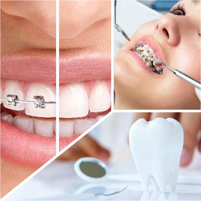 La ortodoncia metálica es una de las más solicitadas para corregir malposiciones dentarias.