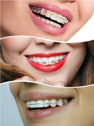 La limpieza y el cuidado de dientes y brackets han de tenerse muy en cuenta a lo largo de este proceso.