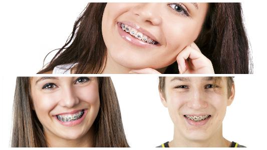 Entre los 6 y los 12 años se recomienda acudir al dentista para la posterior colocación de brackets en Vigo.