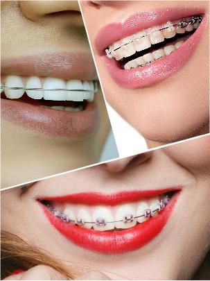 Es necesario prestar especial atención al cepillado dental y al cuidado de los aparatos durante todo este tiempo.