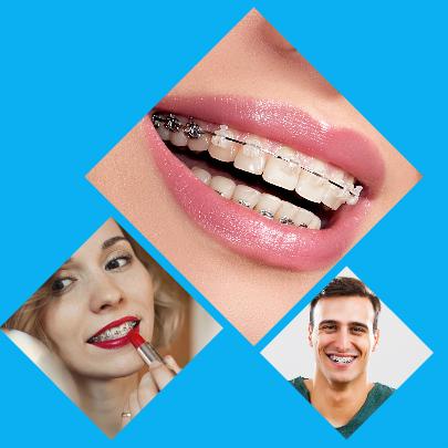 Las maloclusiones y las malposiciones dentarias son tratadas y corregidas con una ortodoncia.