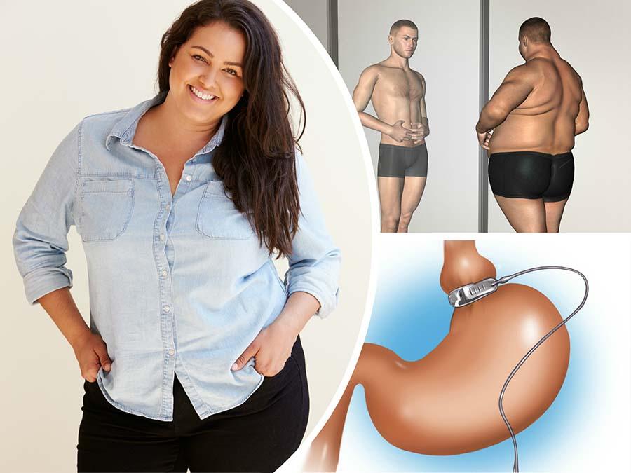 No todas las personas con sobrepeso son aptas para someterse a la intervención de bypass gástrico en Alicante.