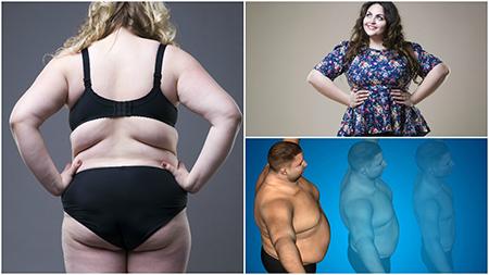La cirugía de bypass gástrico en Sevilla está recomendado para pacientes con obesidad mórbida.