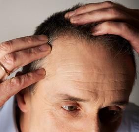 El injerto capilar en Madrid es la mejor solución para la caída del pelo