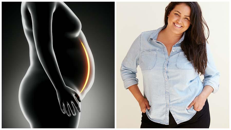 La cirugía bariátrica en Barcelona es el único tratamiento que ayuda a perder peso a personas con obesidad mórbida.
